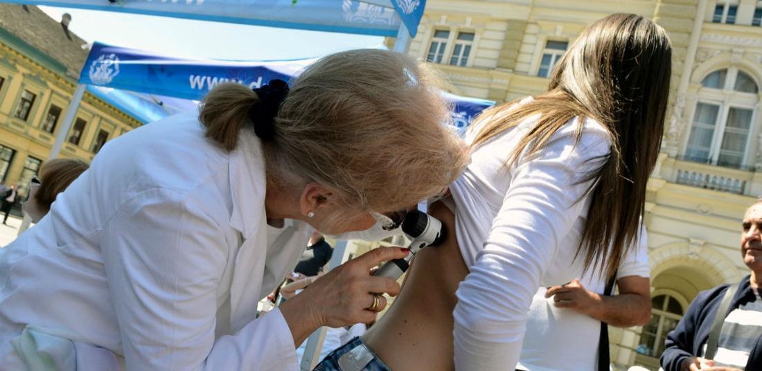 INZ organizuje besplatan screening - pregled na Melanom kože