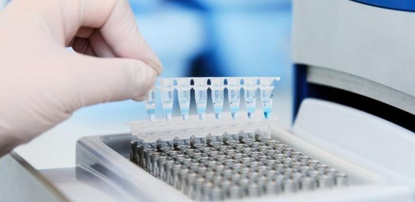 Ispunjeni naknadno postavljeni uslovi za isporuku vakcina putem Covax