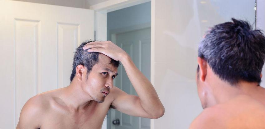 Može li kosa zaista posijediti od stresa?