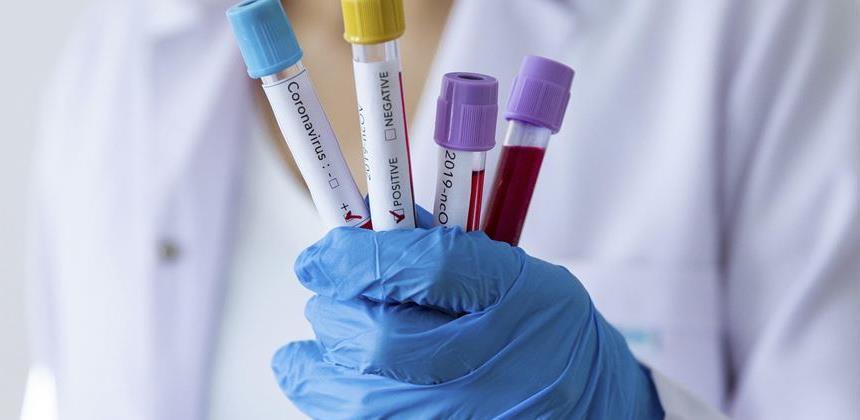 Zakon o dopunama Zakona o zaštiti stanovništva od zaraznih bolesti