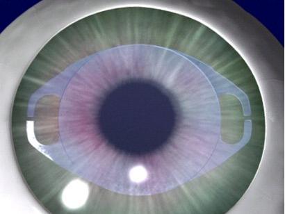 Klinika Svjetlost Banja Luka: Verisyse-Veriflex iris claw leća