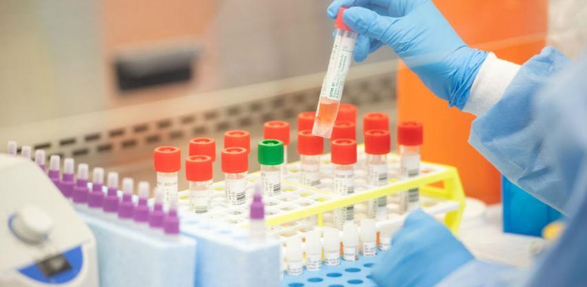 Gdje se u FBiH može uraditi PCR test na koronavirus koji od danas košta 140 KM