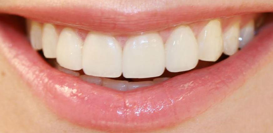 Jedan začin izbijelit će vaše zube do savršenstva
