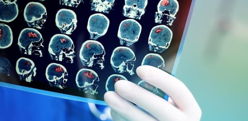 Svjetski dan oboljelih od tumora na mozgu