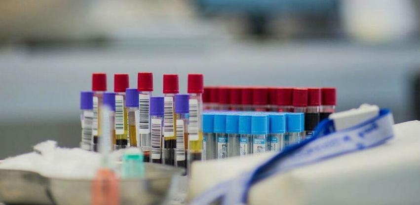 Vlada KS zbog nedostataka reagensa angažuje sve javne zdravstvene ustanove