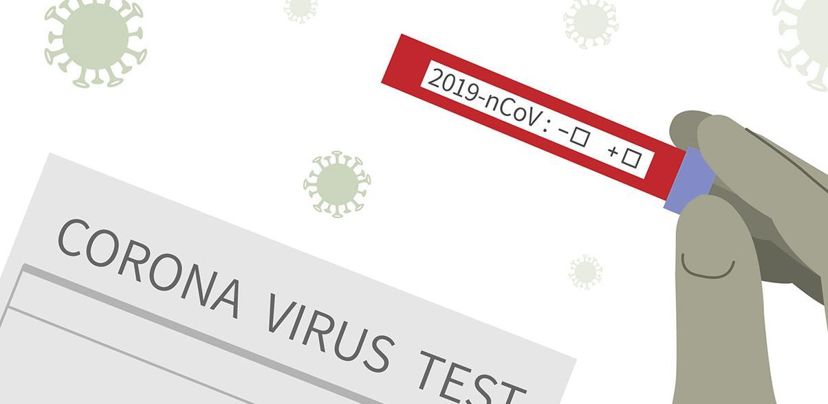 U Bosnu i Hercegovinu stiglo 150.000 testova iz Južne Koreje