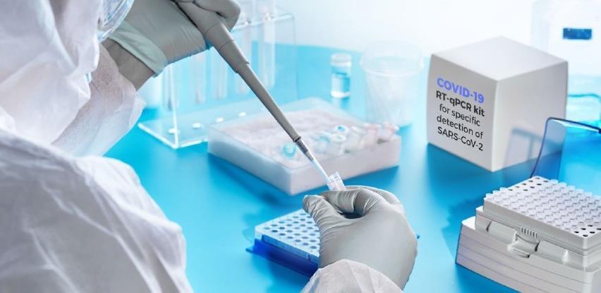 Tri privatne laboratorije vrše testiranje uzorka na koronu iz domova zdravlja KS