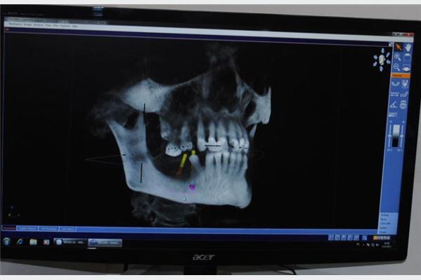 3D rendgenom moguće odrediti pravilan položaj implatanta.
