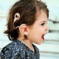 Widex slušni aparati: Kako funkcionira kohlearni implantat?