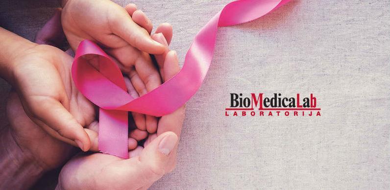 """""""Ružičasti oktobar"""" i u BioMedicaLab-u: Akcija tumor marker Ca 15-3 i Ca 125"""