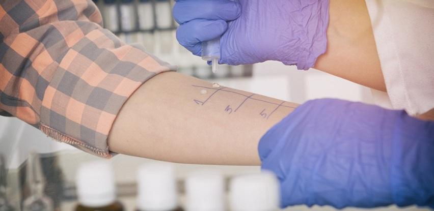 Uradite testiranje na alergije kako bi bili sigurni na šta ste tačno alergični