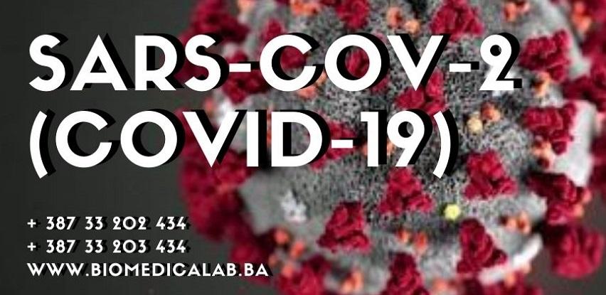Uradite PCR ili serološki test na COVID-19 infekciju!