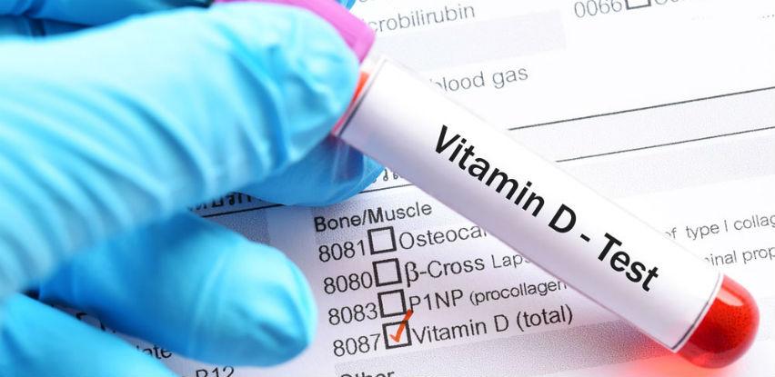 Provjerite imate li dovoljno Vitamina D